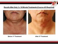 Calling all double chins for a FREE chin definition treatment.