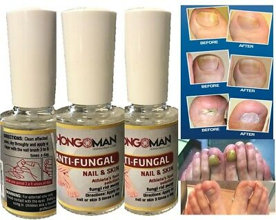 2 ANTI FUNGAL TREATMENT EXTRA STRENGTH TOENAIL FUNGUS ATHLETES FOOT FUNGI NAIL 2