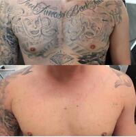 TATTOO REMOVAL - 4 TIMES FASTER!
