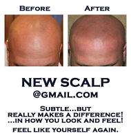 Get Your Scalp Back Into Shape!