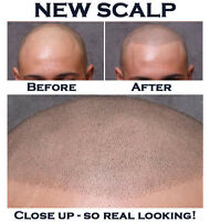 Looking for balding men or women who are seeking a new look
