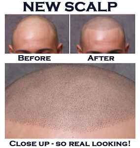 Look Great For Your Next Job! (a solution for balding men)