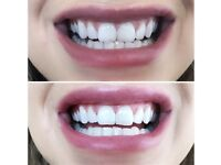 Laser teeth whitening (mobile + in clinic)