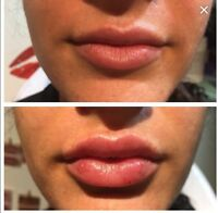 Botox and Dermal Fillers (Stylage)