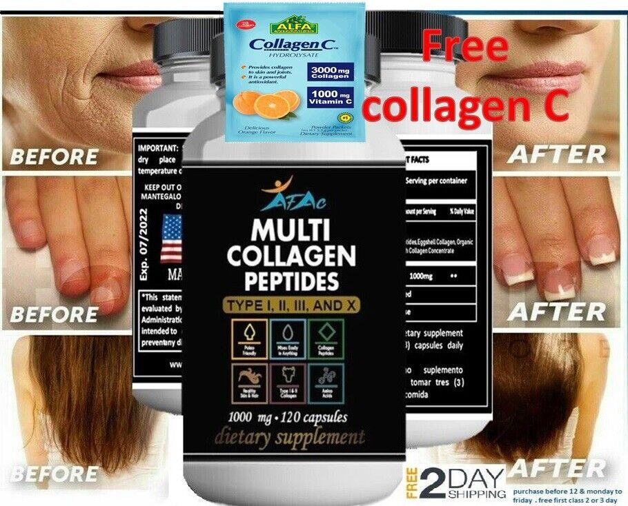 MEJORES Pastillas De Colageno Hidrolizado Con Vitamina C - 120 Capsulas + free C