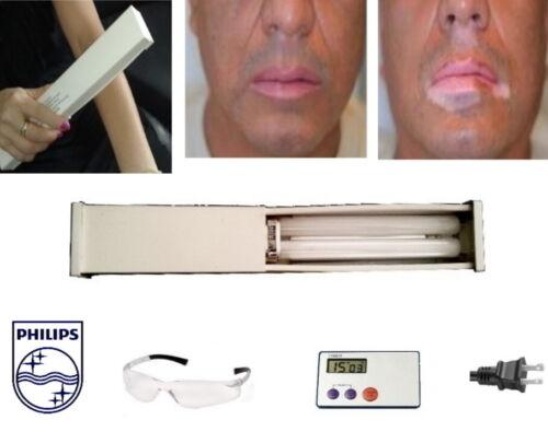 Lamp + Bulb  Narrowband UVB Vitiligo Psoriasis Eczema phototherapy