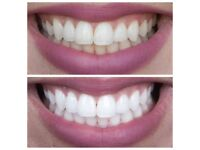 Teeth Whitening Treatment Overview