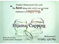 Hijama/wet cupping
