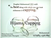 Hijama/cupping Birmingham from £20