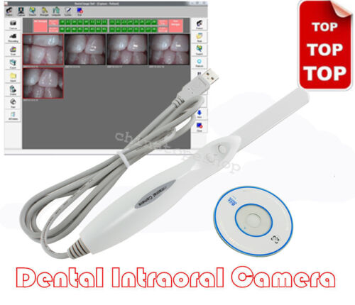 Endoscopy Dental Intraoral Camera Oral Digital Camera Imaging 6-LED USB 2.0 Lamp