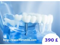 Dental Implant for 390£ - Final Price, No hidden costs!