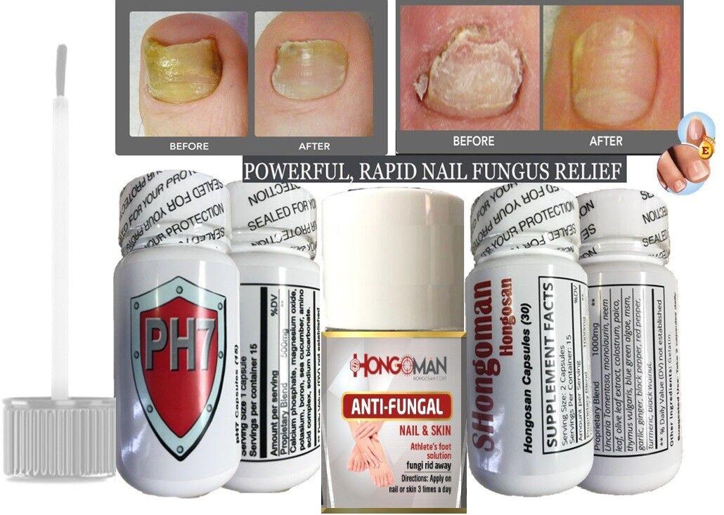 ZANA HONGOS ANTI FUNGAL NAIL Uñas + capsules relief hongo unas pies hongos quick
