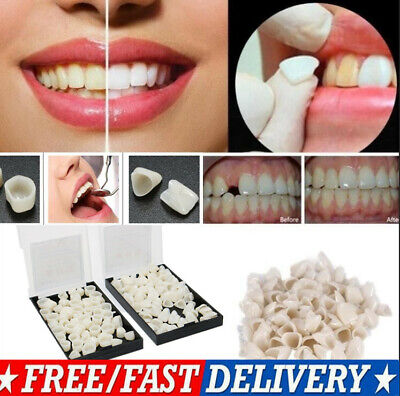 Synthetic Resin Dental Temporary Crown Anterior Front Veneers Molar Teeth