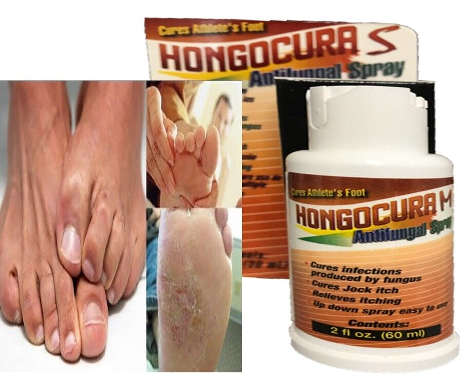 Nail Fungus Treatment Solution For Toe & Fingers Maximum Strength anti fungal sp