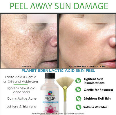 88% Lactic Acid Skin Face Chemical Peel - Remove Dark Spots - Clinical Results