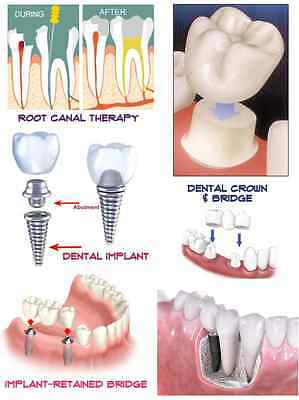 Dental Education Poster Endodontic Root Canal Bridge Crown Impant 24x36