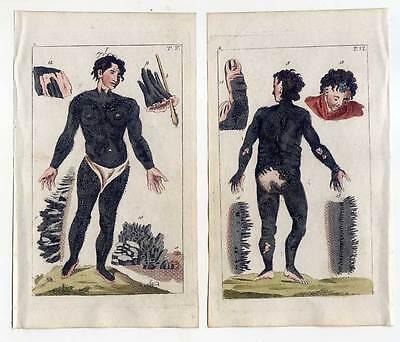 Stachelschweinmensch-Fehlbildung-Medizin - 2 Kupferstiche 1810 G. T. Wilhelm