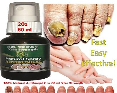 ANTI FUNGAL TREATMENT EXTRA STRENGTH TOENAIL FUNGUS FUNGI XS NAIL ATHLETE'S -