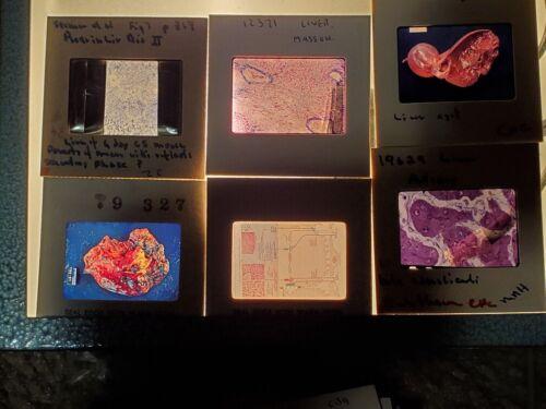 TWENTY-FIVE Very Cool Vintage Medical Film Slides-Organs, Diseases, X-rays, etc.