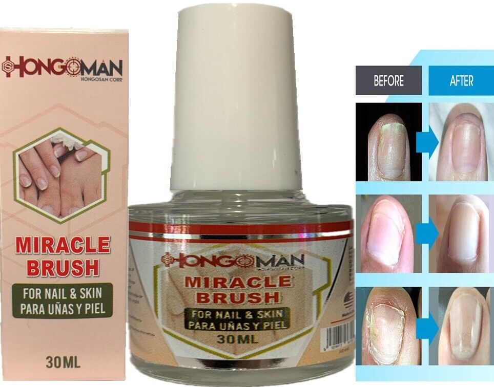 Nail Fungus Infection - Nail Fungal Treatment fungi BOX hongosan corp original
