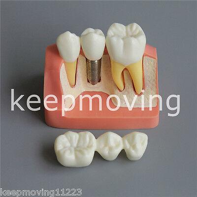Dental Implant Analysis Crown Bridge Demonstration Teeth Tooth Model Typodont