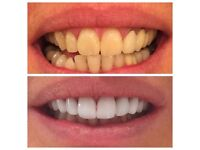 Professional Laser teeth whitening -Special Offer- ( 40 Pounds 1 Hr Session,Guaranteed Results!)