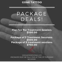 Laser Tattoo Removal Packages!