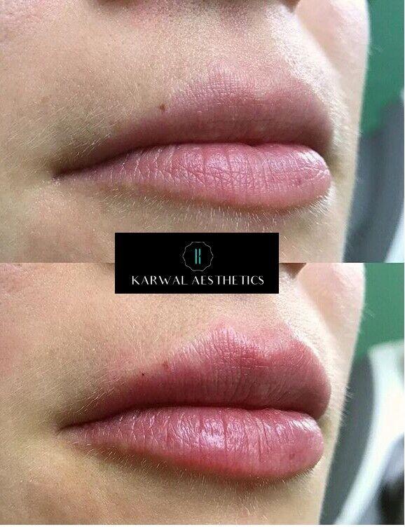 Dermal Lip Fillers - Karwal Aesthetics | in Harrow, London | Gumtree