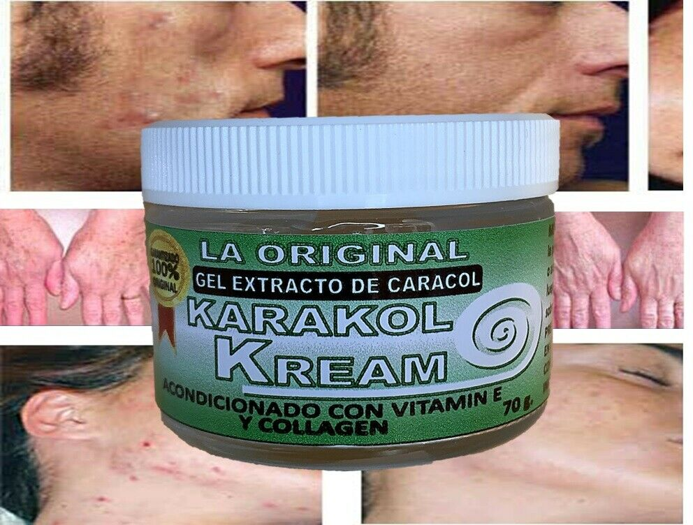 Karakol kream,dermaccina manchas,estrias,snail cream,crema de caracol,acne 1