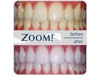 Zoom Day white home whitening kit