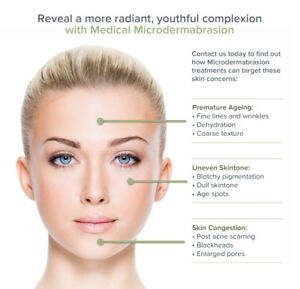 Microdermabrasion treatment Only $ 35 (Original price is $85)