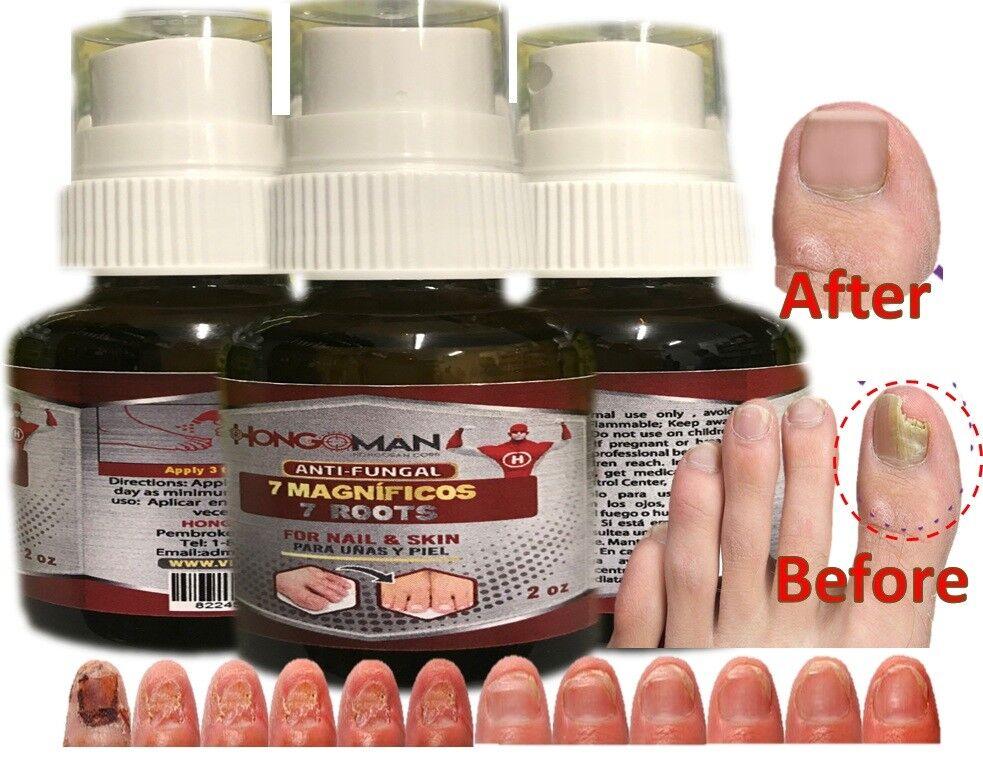 Fungal nail antifungal nails treatment anti fungus toe nail hongos uñas y pies 2 1