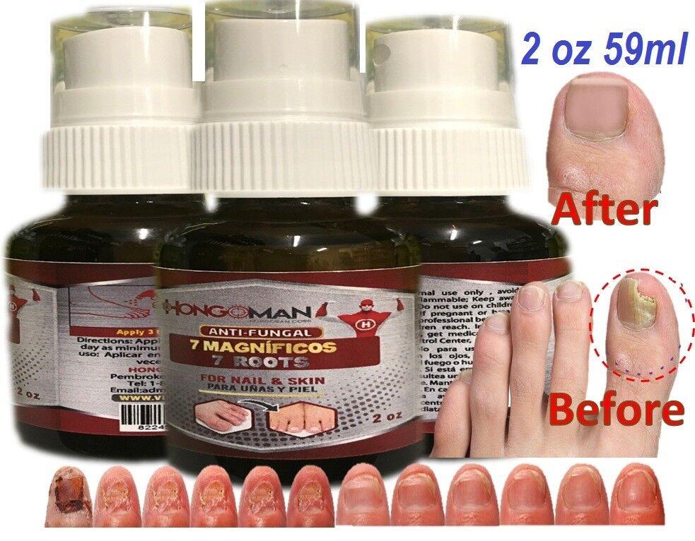 Fungal nail antifungal nails treatment anti fungus toe nail hongos uñas y pies 2