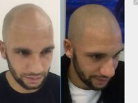 Models Required For Scalp Micropigmentation