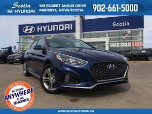 2018 Hyundai Sonata SPORT - $150 Biweekly - HEATED SEATS!!
