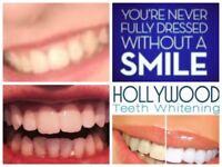 Hollywood laser teeth whitening