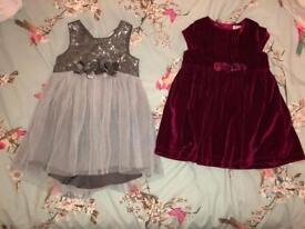 Girls 9-12 month dresses
