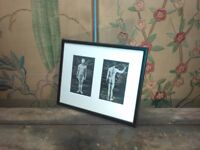pair vintage anatomical medical prints one mount and framed unusual art design piece surrey london