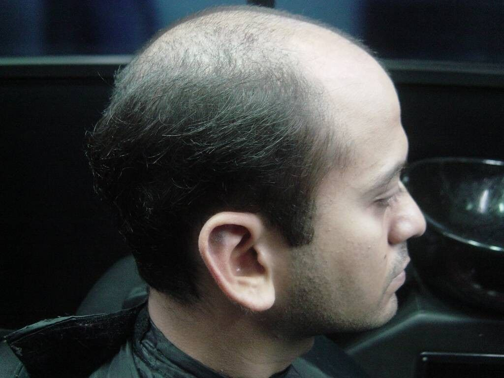 Men Wig Toupee, Toppik, Caboki Hair SystemNatural BlackDONT LET BALDNESS BEAT YOUin Birmingham City Centre, West MidlandsGumtree - Men Wig Toupee, Toppik, Caboki Hair System Natural Black DONT LET BALDNESS BEAT YOU Attract Women, Look Younger, feel fitter, be confident. Women love men with hair so beat your baldness today! There is no surgery, no transplants, no concealers. Its...