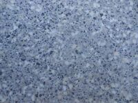 Splayed section of worktop