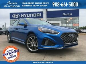 2018 Hyundai Sonata SPORT - $170 Biweekly - ALL NEW REDESIGN!!