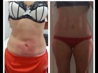 Lipoglaze cryogenic-lipolysis (fat freezing) offer-£49.00Sittingbourne/Rochester/Strood/canterbury