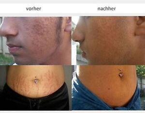 Epidermx eine proaktive mircodermabrasion gegen Akne,Dehnungsstreifen,Narben.