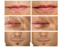 Laser Microcurrent RF BEST Lip Filler Plumper & Wrinkle Eraser Skin Care Machine