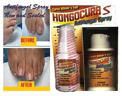 Anti Fungal Spray Treatment Extra Strength Toenail Fungus Athletes Foot Nail 1
