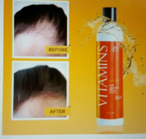 VITAMINS shampoo for hair loss (organic)
