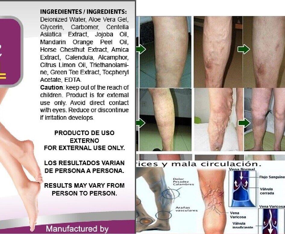 Medicine Herbal Ointment Varicose Veins Vasculitis Treatment Foot Care Cream USA 3