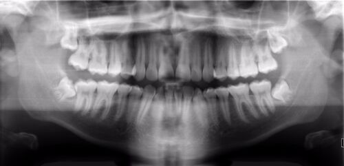 Dental X-Ray Phosphor Plate 15x30 Radiology