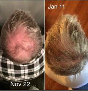 Dare to Have healthy hair- ask me about your free sample today! Moose Jaw Regina Area image 2