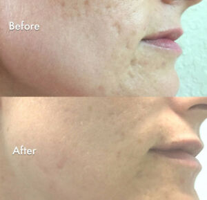 Spring Rejuvenation! Discover the benefits of Microneedling!!